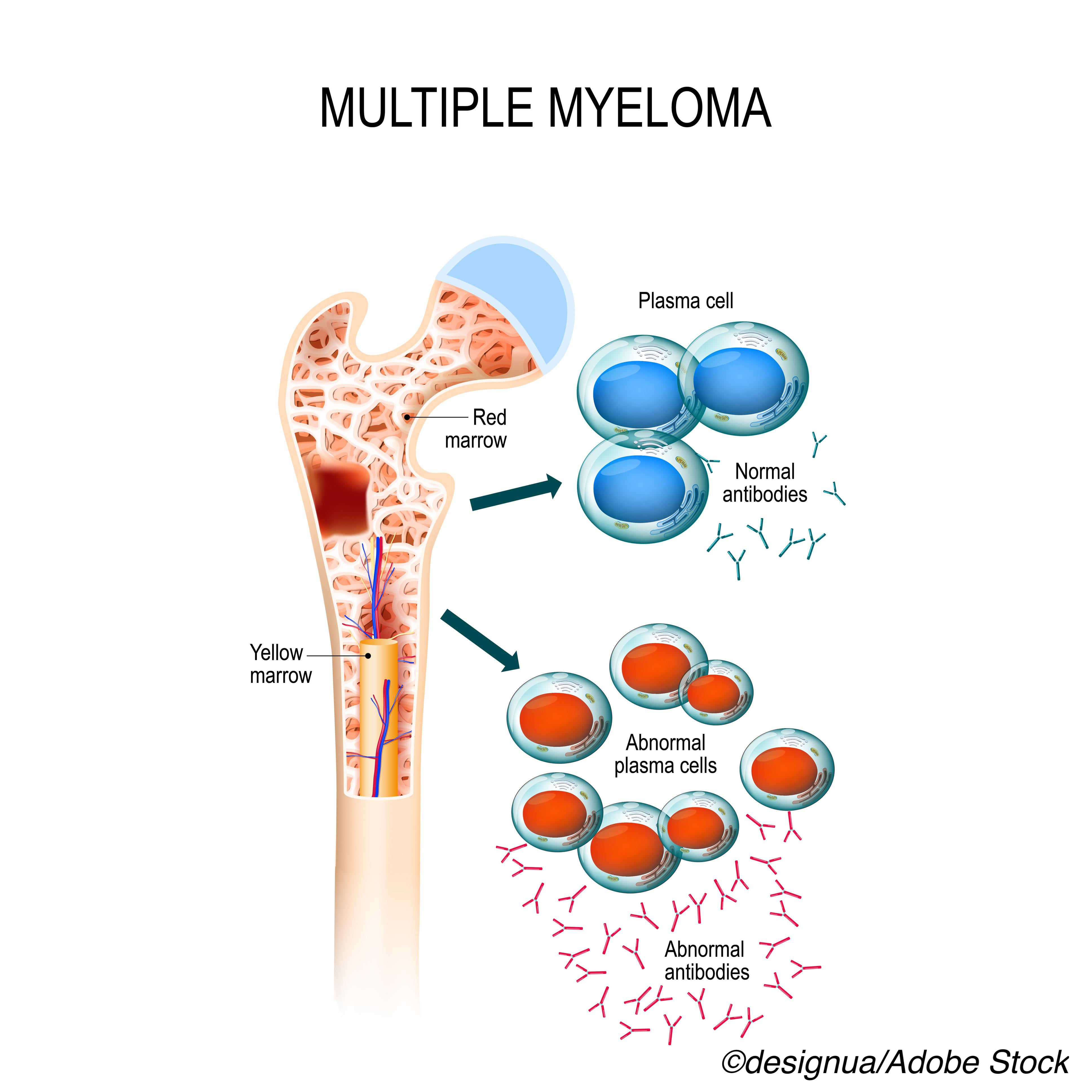 FDA OKs Melflufen Plus Dexamethasone for Relapsed or Refractory Multiple Myeloma