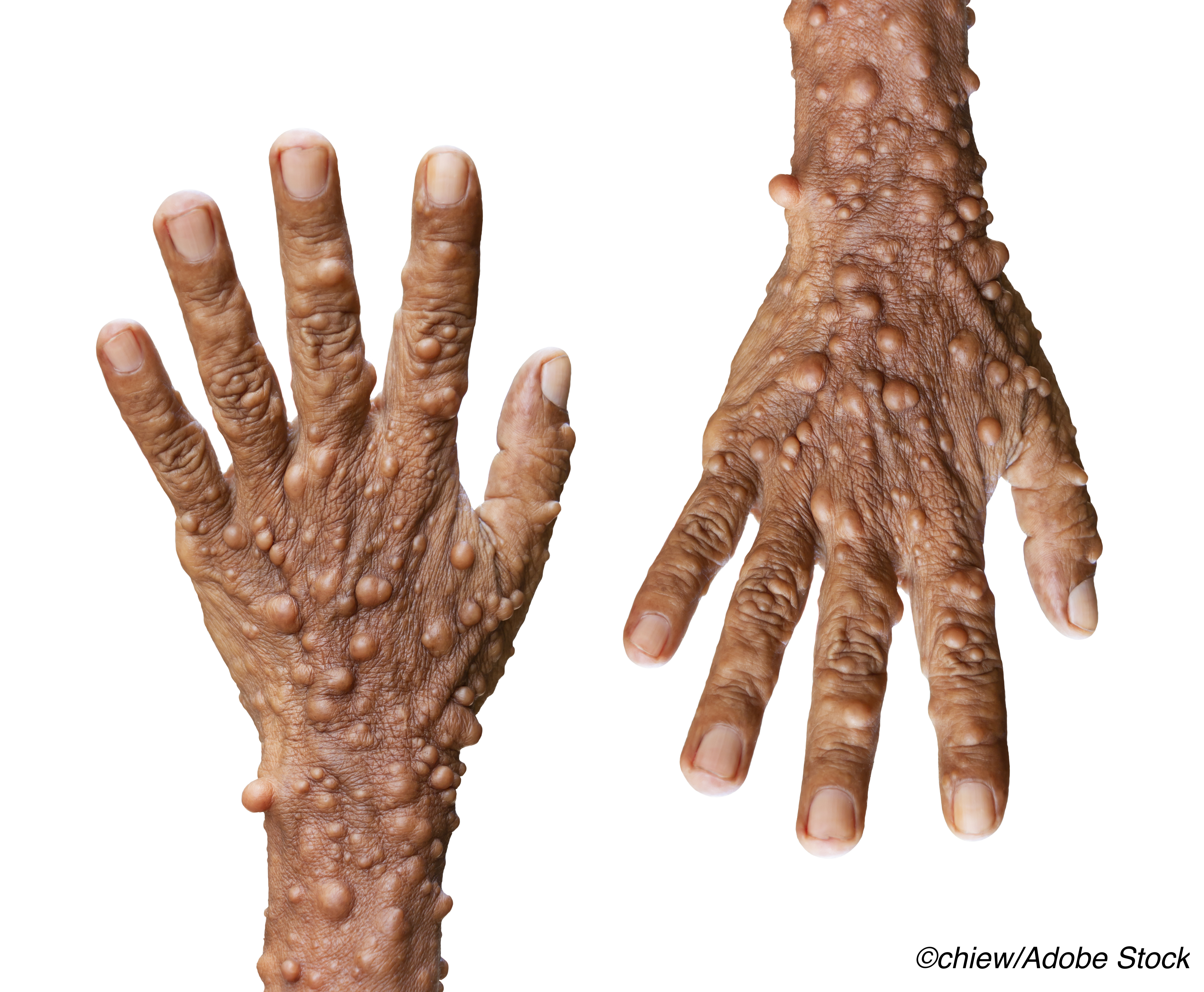 Neurofibromatosis Type 1: Frequent, Early Neoplasms Associated with Worse Outcomes