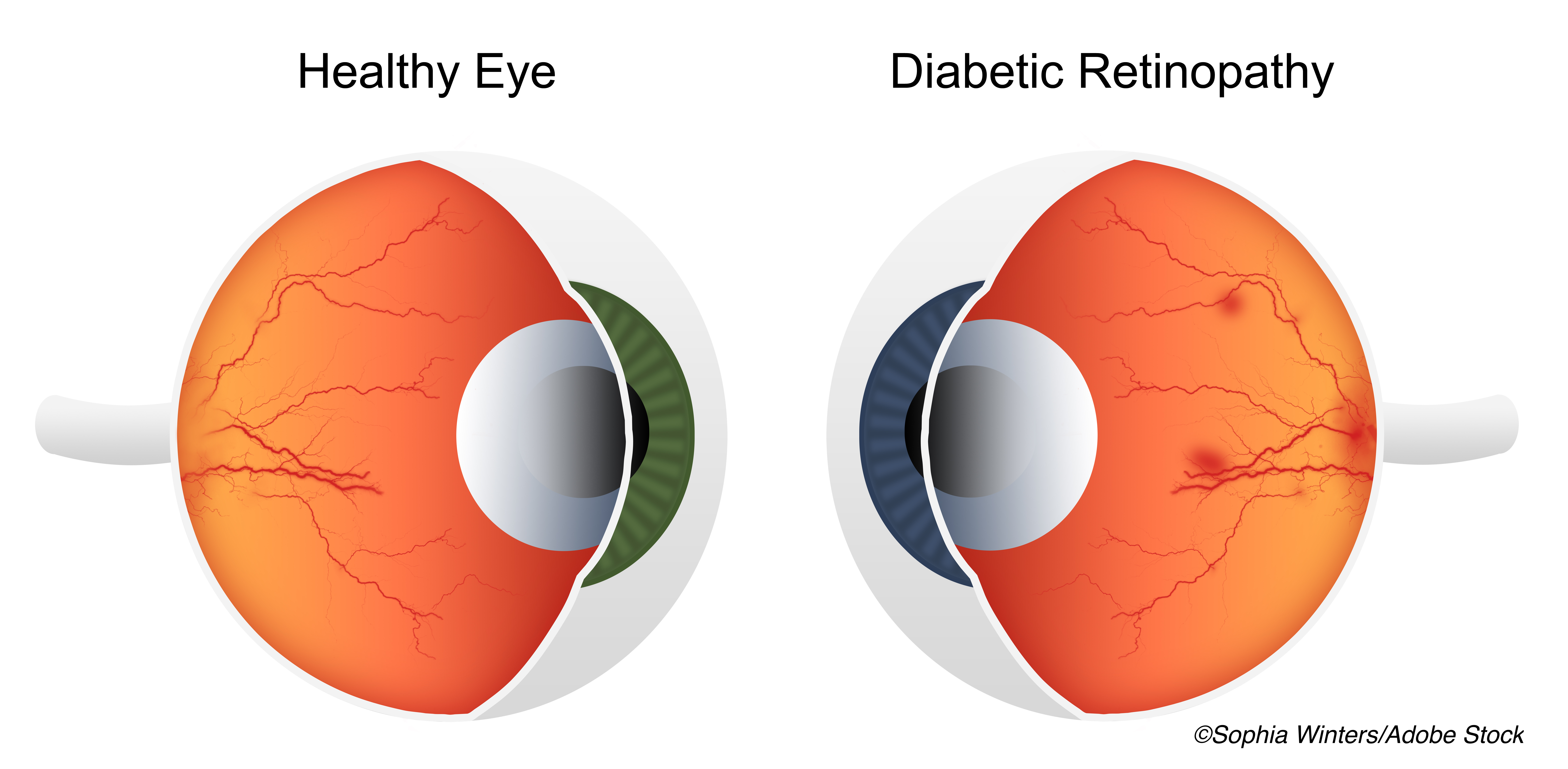 Prophylactic Aflibercept Significantly Reduced DME, Proliferative Diabetic Retinopathy