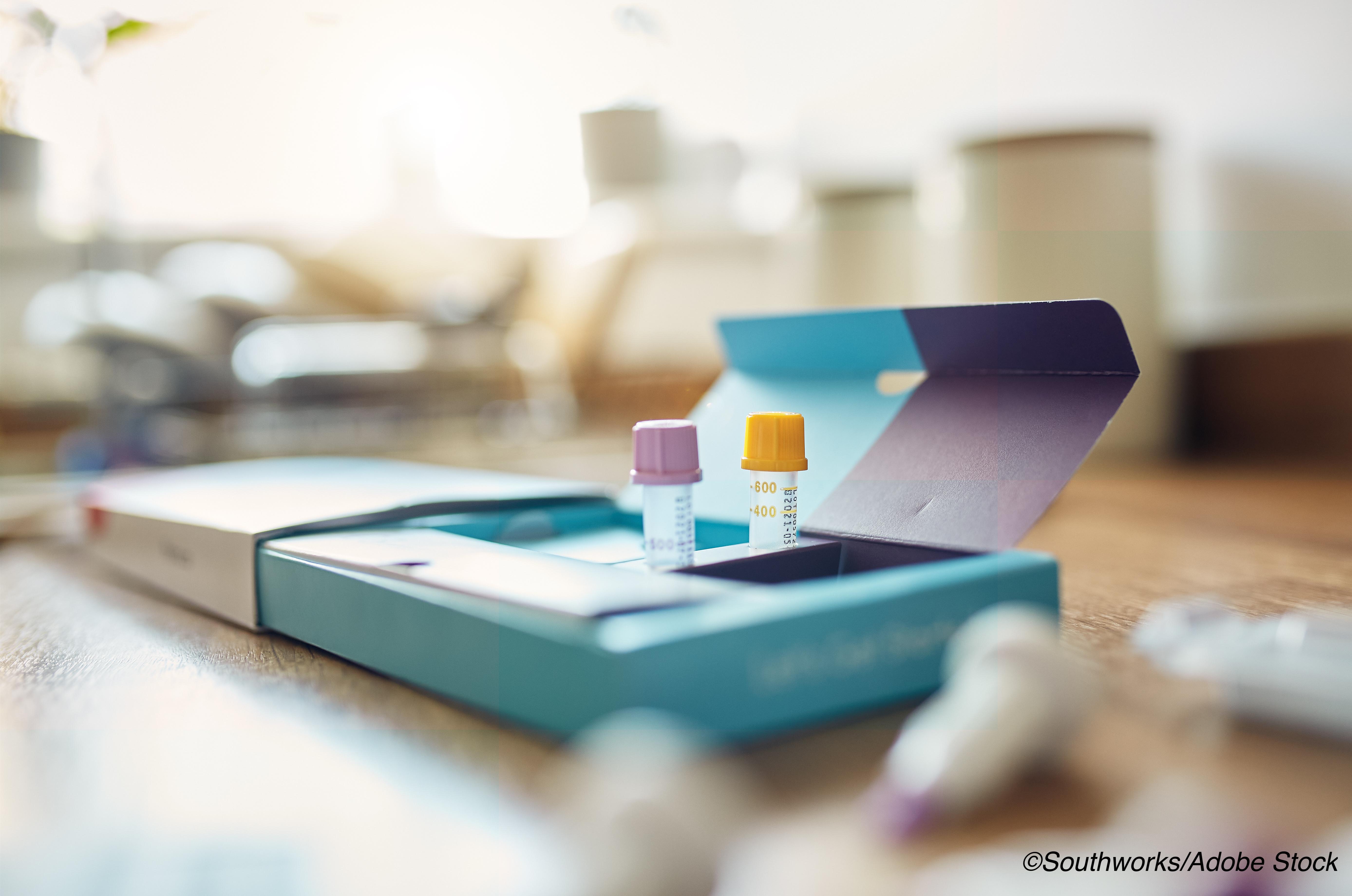 Covid-19: FDA EUA首次家用抗体检测