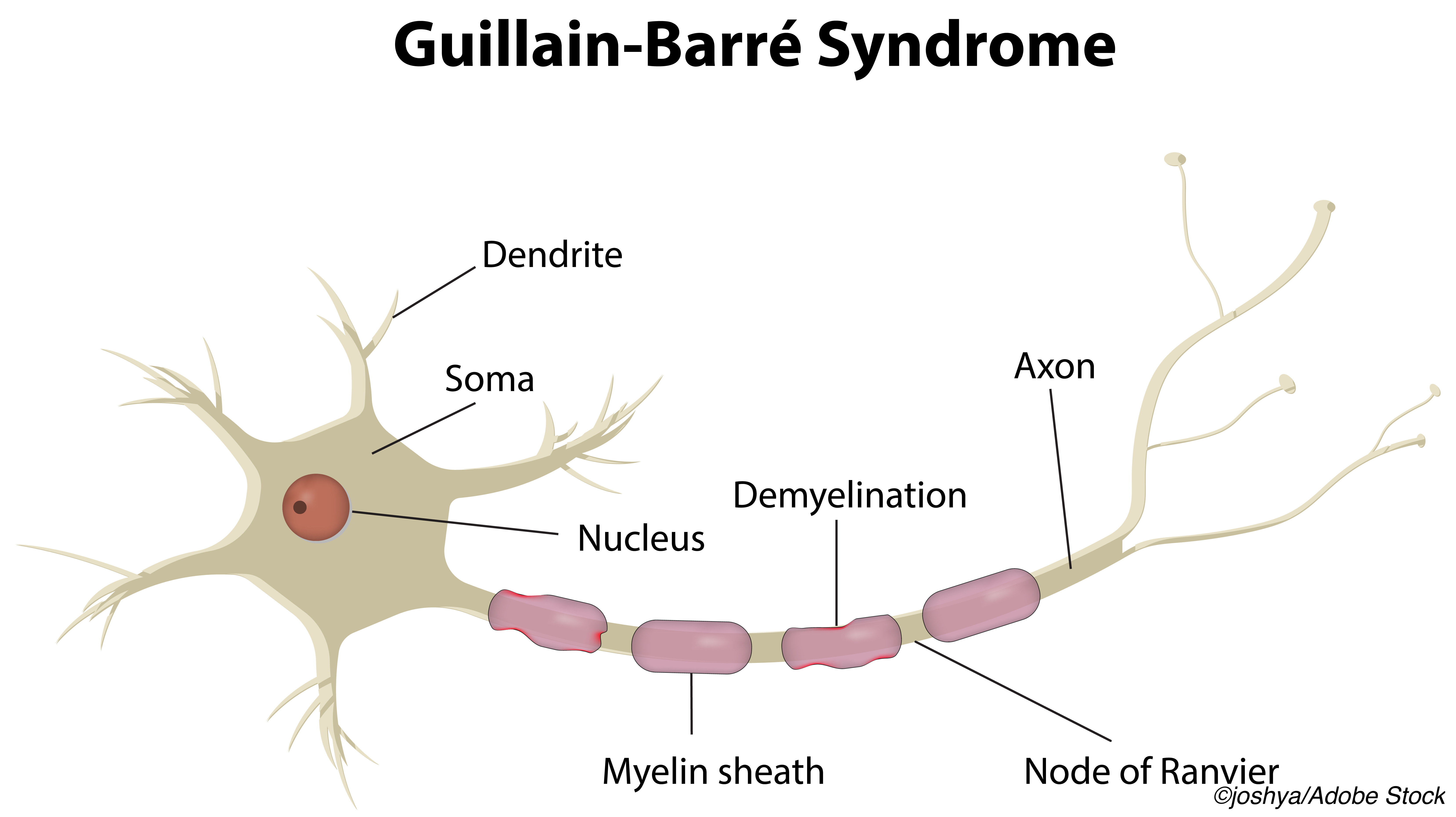 Guillain-Barré Case Reported After Covid-19 Vaccination