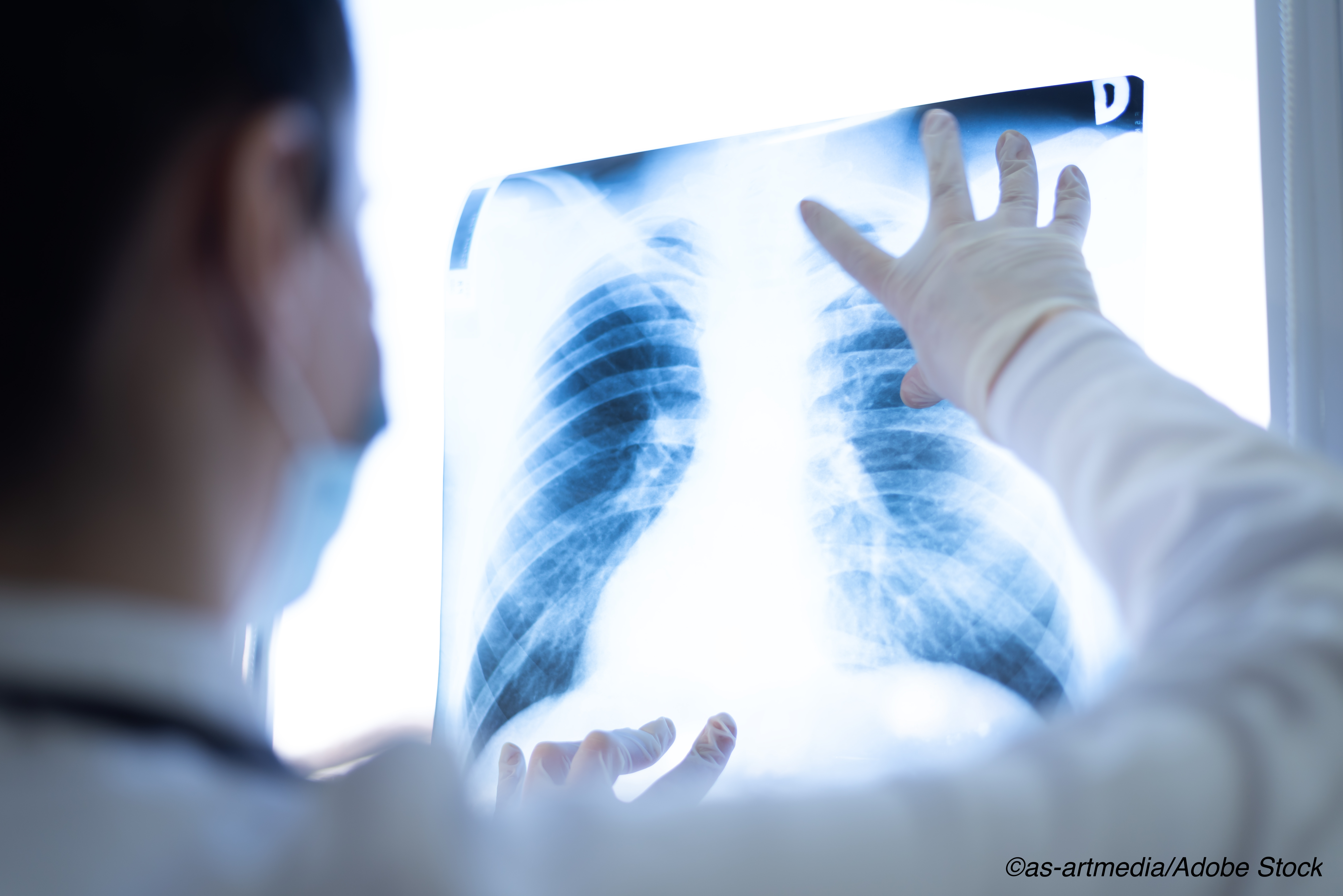 Patients More Likely to Skip Annual Lung Ca Screening After First Negative Test
