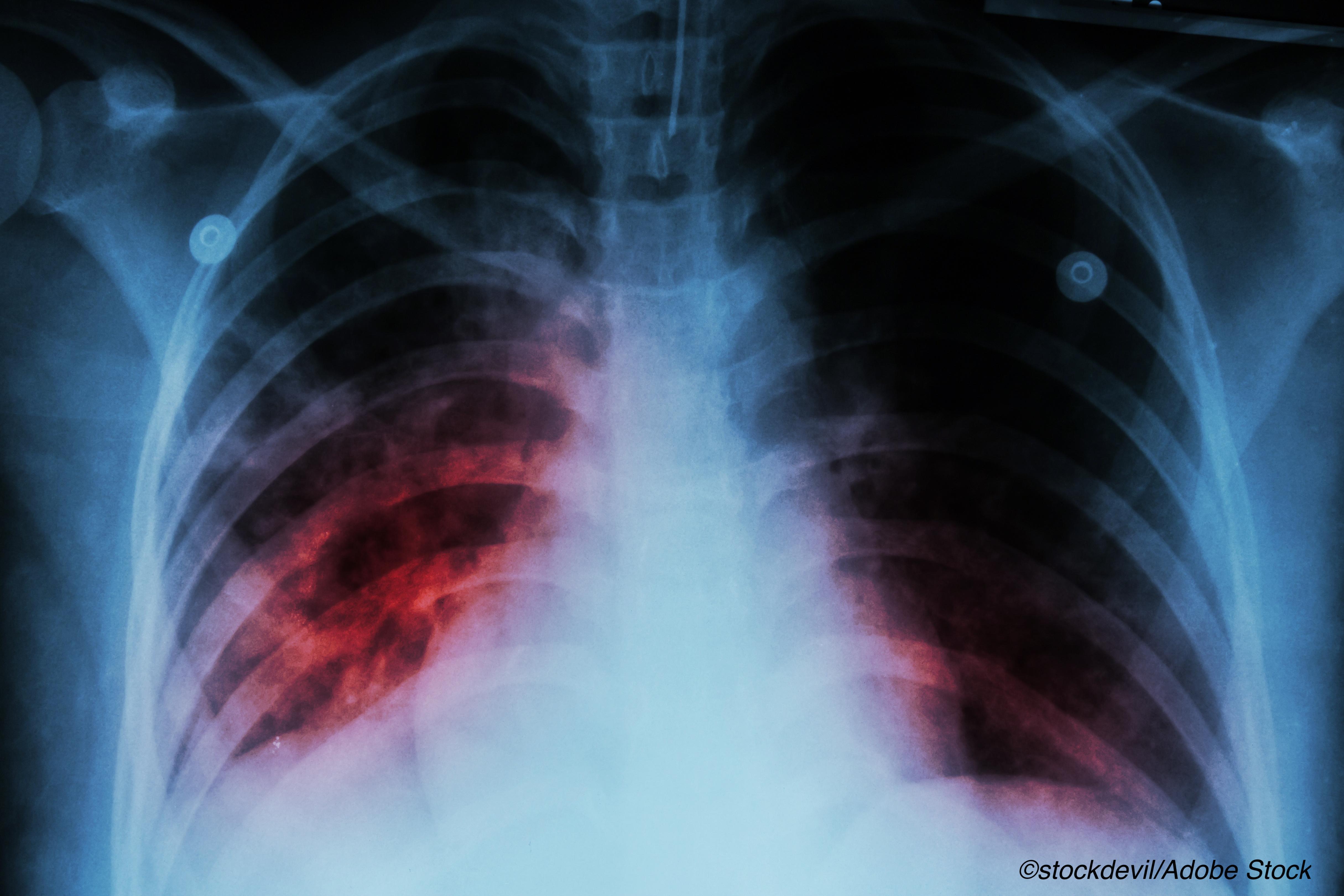 较短的结核病治疗方案证明了疗效