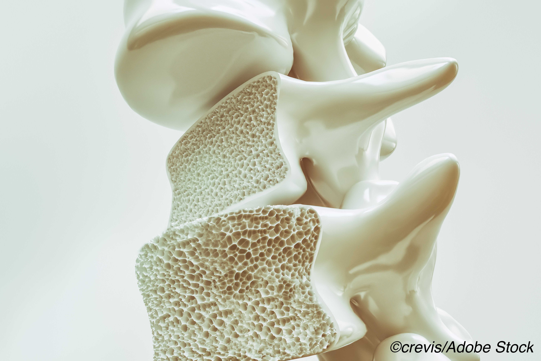 脆弱的骨头与女性的ascvd相关联