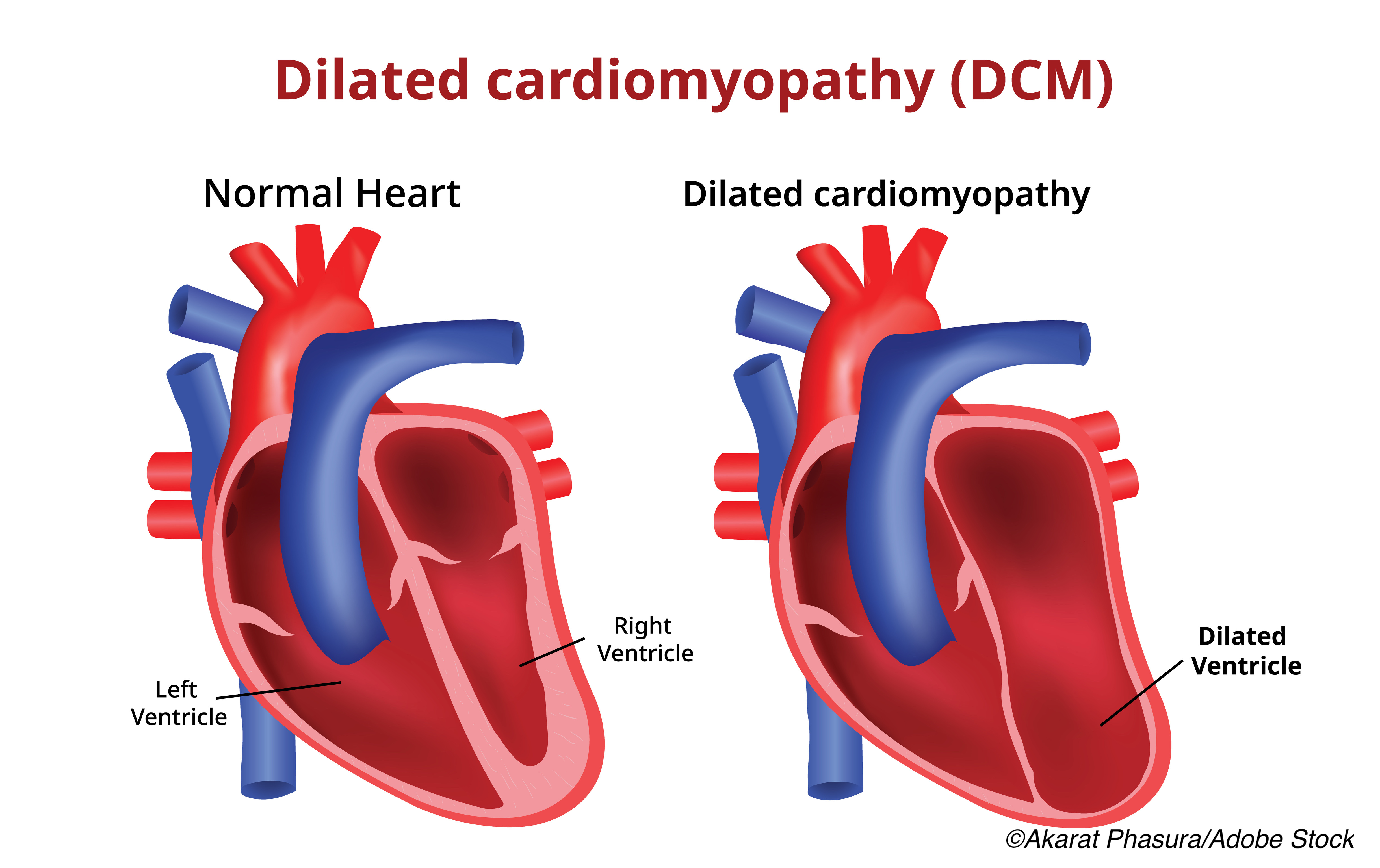 Genetic Profile Refines Risk of SCD in Patients with Left Ventricular Systolic Dysfunction