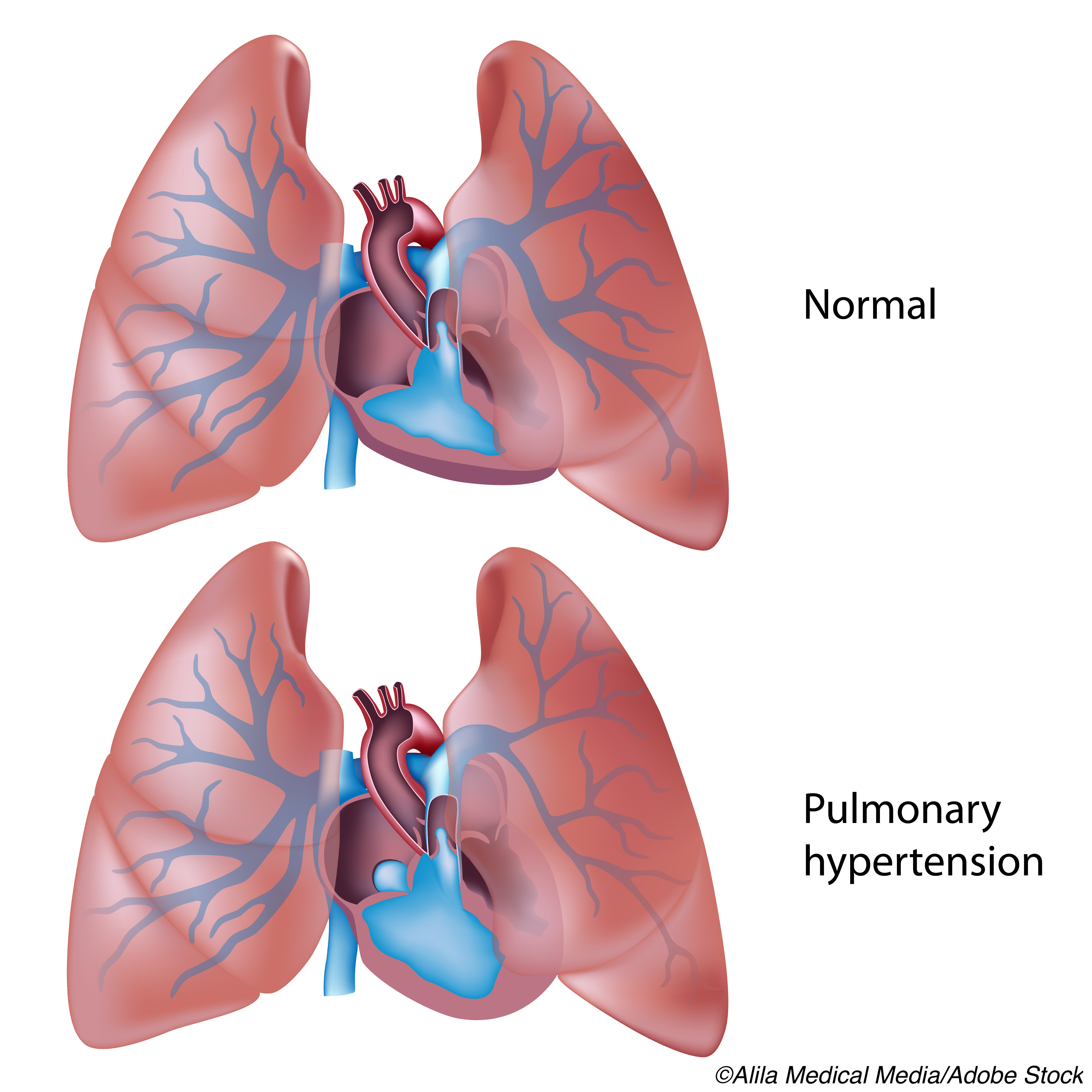 Riociguat May Benefit PAH Patients with Poor PDE5i Therapy Response